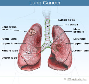 2011-lung-cancer