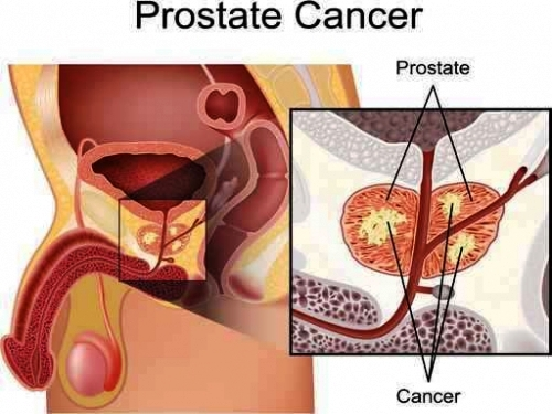 prostate-cancer-news-australia