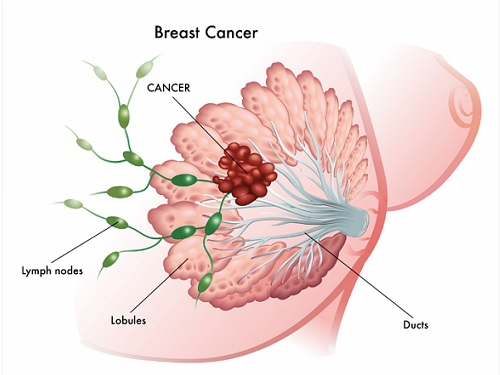 breast cancer news australia
