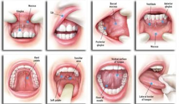 oral cancer mouth teeth gum sydney melbourne