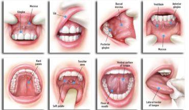oral cancer mouth teeth gum sydney melbourne